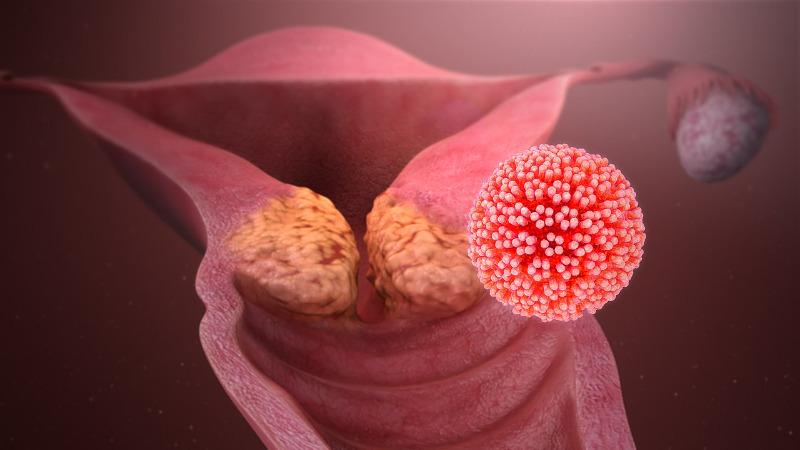 papilom canceros
