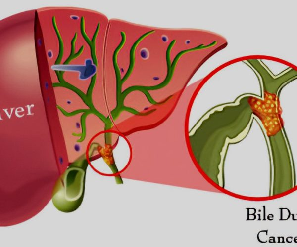 bile-duct-cancer